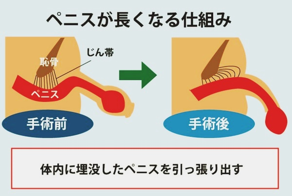 ペニスを大きくする方法 手術